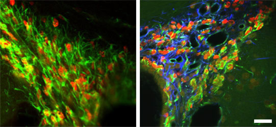 Newly-born-astrocytes-and-neural-stem-cells-in-the-adult-rat-brain
