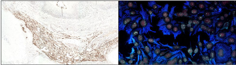 Colorimetric vs Fluorescent Immunohistochemistry