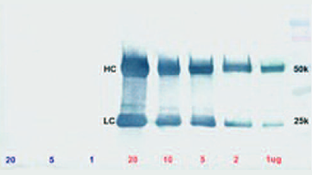 Thumbnail Preview of Light Chain Specific Antibodies For Western Blotting After Immunoprecipitation