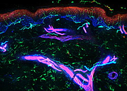 Confocal image of human skin innervation and vasculature