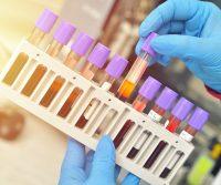 Antibodies for vaccine validation
